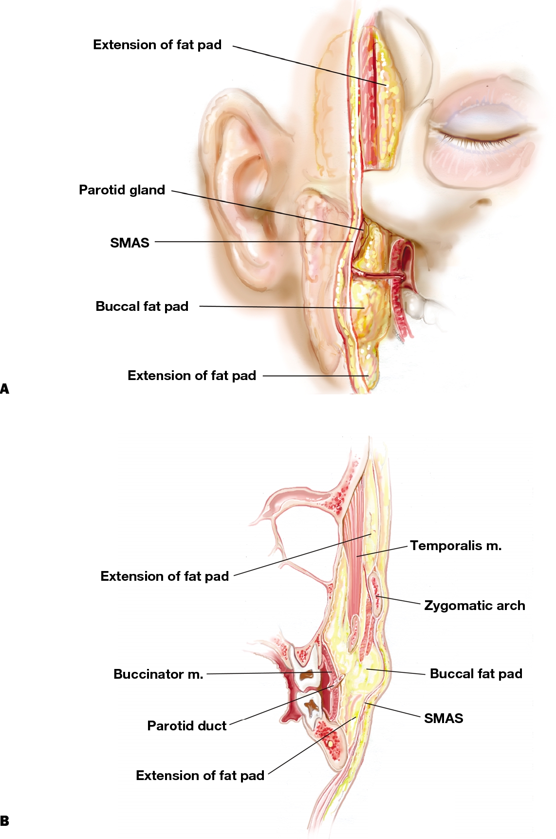 Figure 3 from Managing the buccal fat pad. - Semantic Scholar