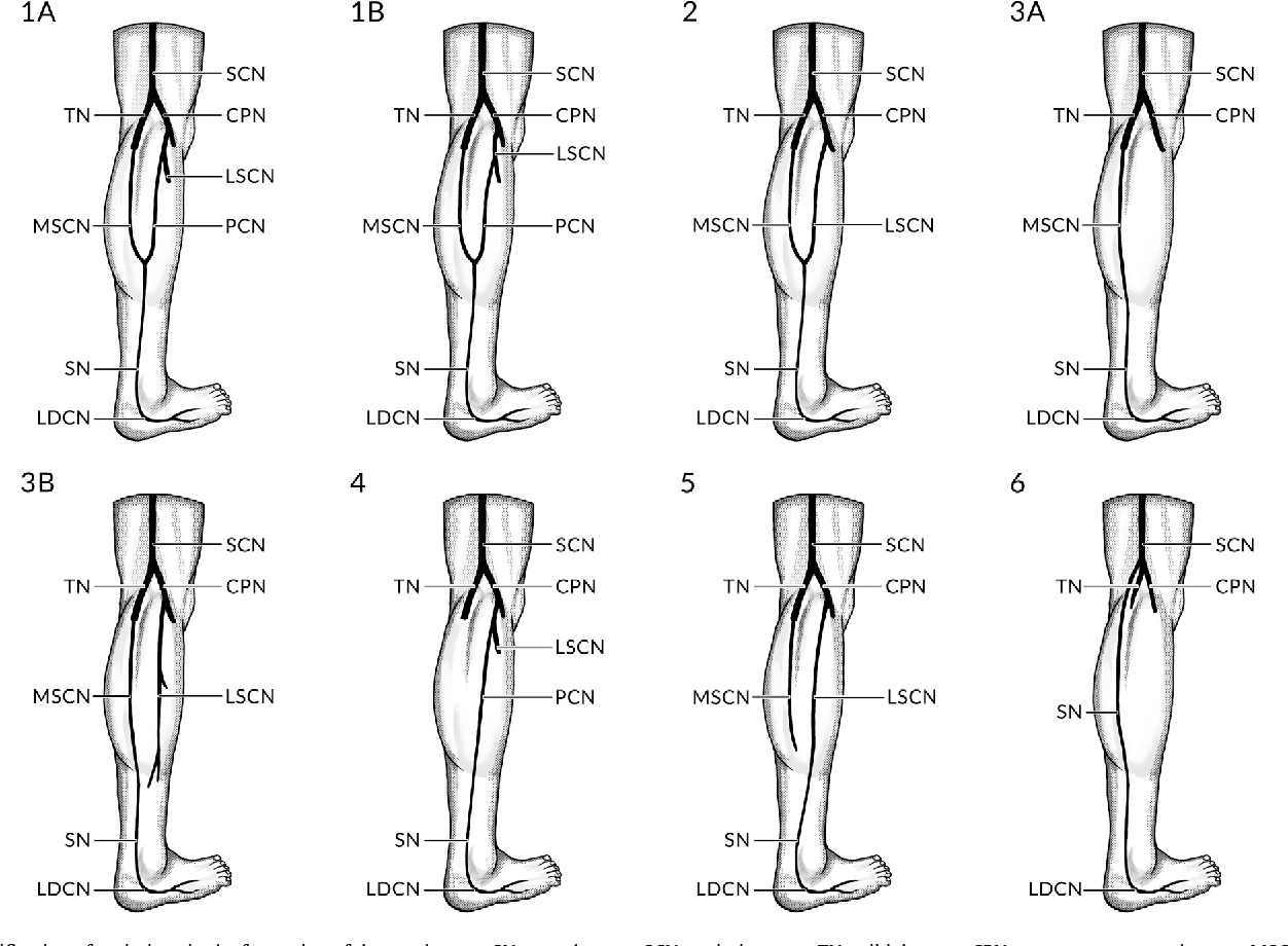 Anatomical variations of the formation and course of the sural nerve ...