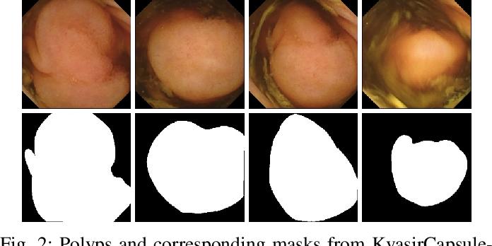 Figure 2 for NanoNet: Real-Time Polyp Segmentation in Video Capsule Endoscopy and Colonoscopy