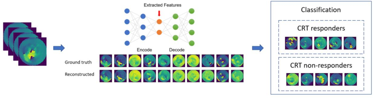 Figure 1 for A method using deep learning to discover new predictors of CRT response from mechanical dyssynchrony on gated SPECT MPI
