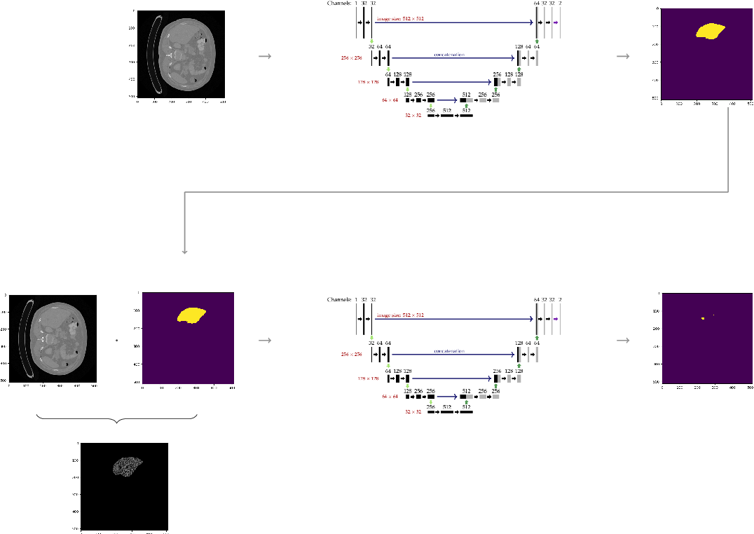 Figure 2 for A Joint Deep Learning Approach for Automated Liver and Tumor Segmentation