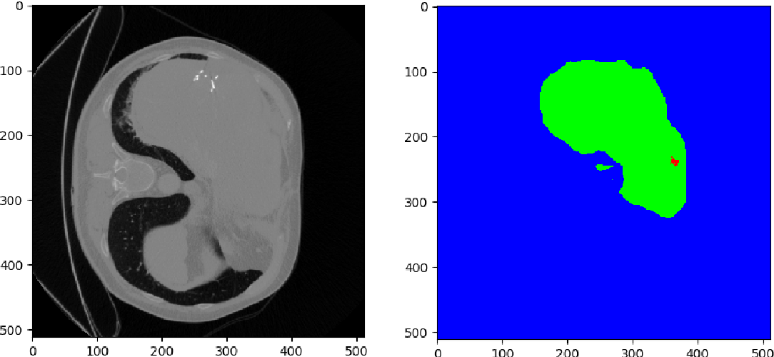 Figure 3 for A Joint Deep Learning Approach for Automated Liver and Tumor Segmentation