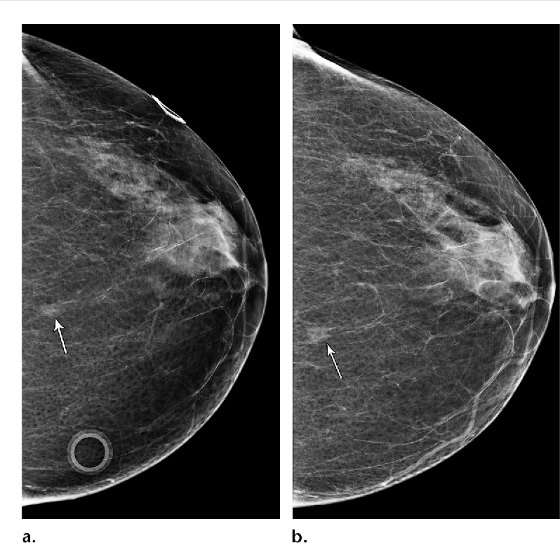 Figure 1 from Developing Asymmetries at Mammography: A Multimodality