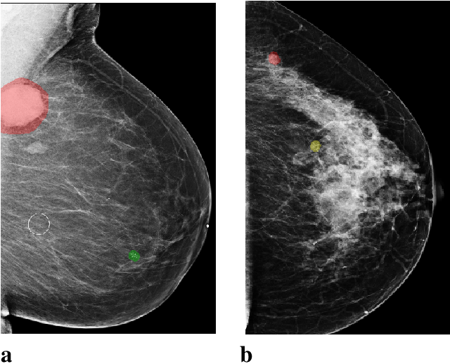 Figure 1 for Reducing false-positive biopsies with deep neural networks that utilize local and global information in screening mammograms