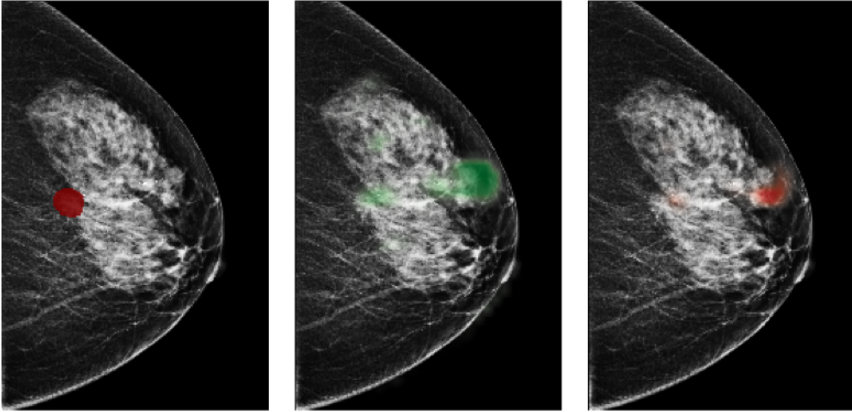 Figure 3 for Reducing false-positive biopsies with deep neural networks that utilize local and global information in screening mammograms