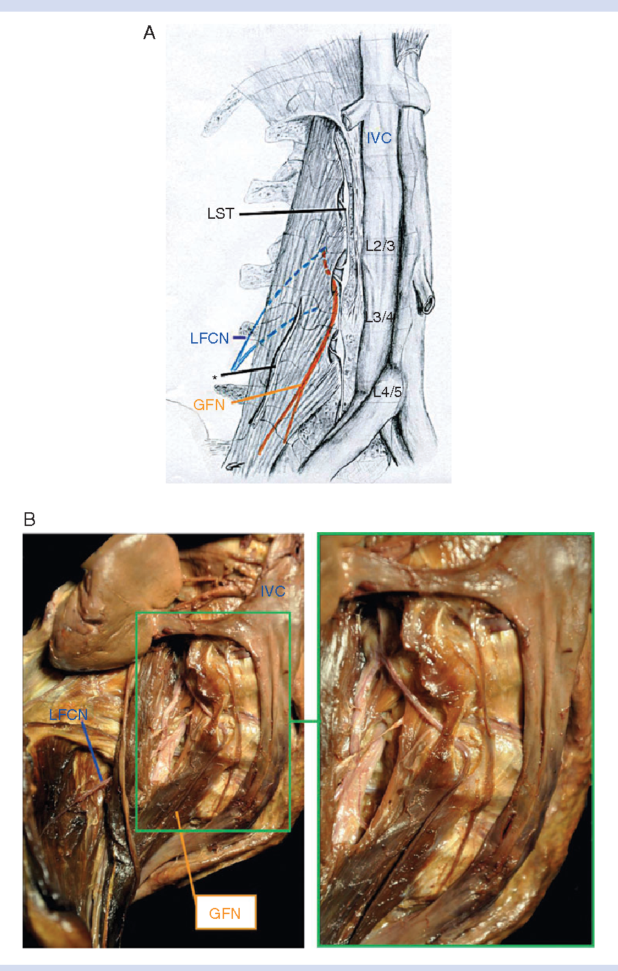 Susceptibility of the genitofemoral and lateral femoral cutaneous ...