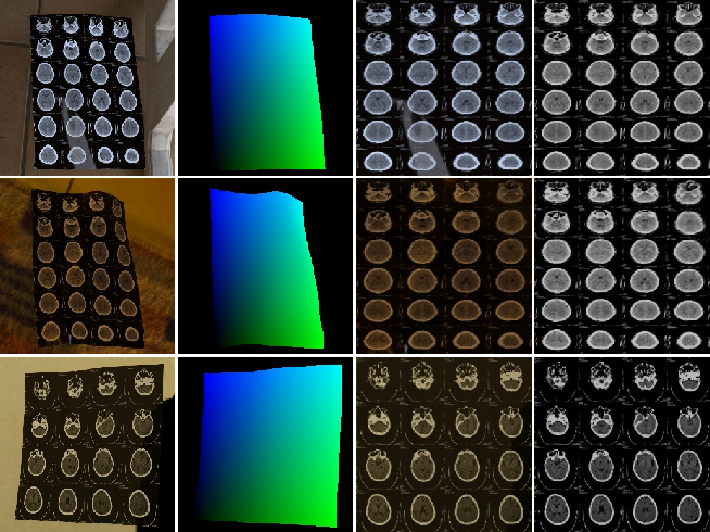 Figure 1 for CT Film Recovery via Disentangling Geometric Deformation and Illumination Variation: Simulated Datasets and Deep Models