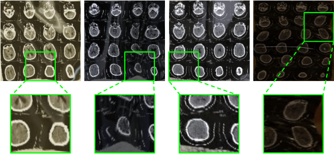 Figure 3 for CT Film Recovery via Disentangling Geometric Deformation and Illumination Variation: Simulated Datasets and Deep Models
