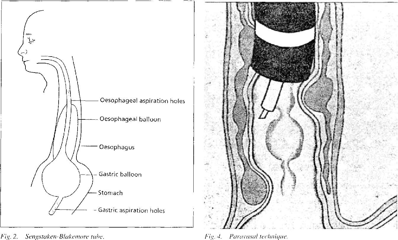 Figure 2 from Bleeding esophageal varices — Therapy and ...