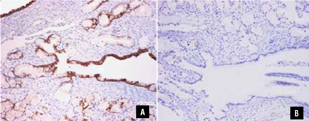 Figure 4 from Giant multicystic cystadenoma of Cowper\'s gland: a ...