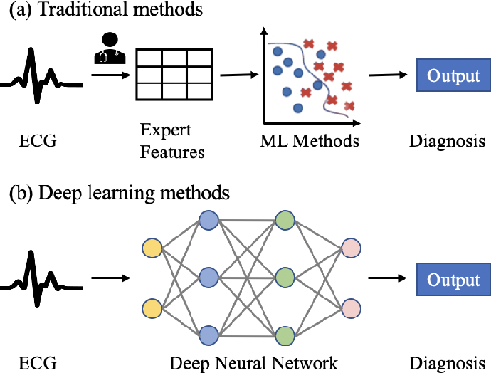 Figure 1 for Interpretable Deep Learning for Automatic Diagnosis of 12-lead Electrocardiogram
