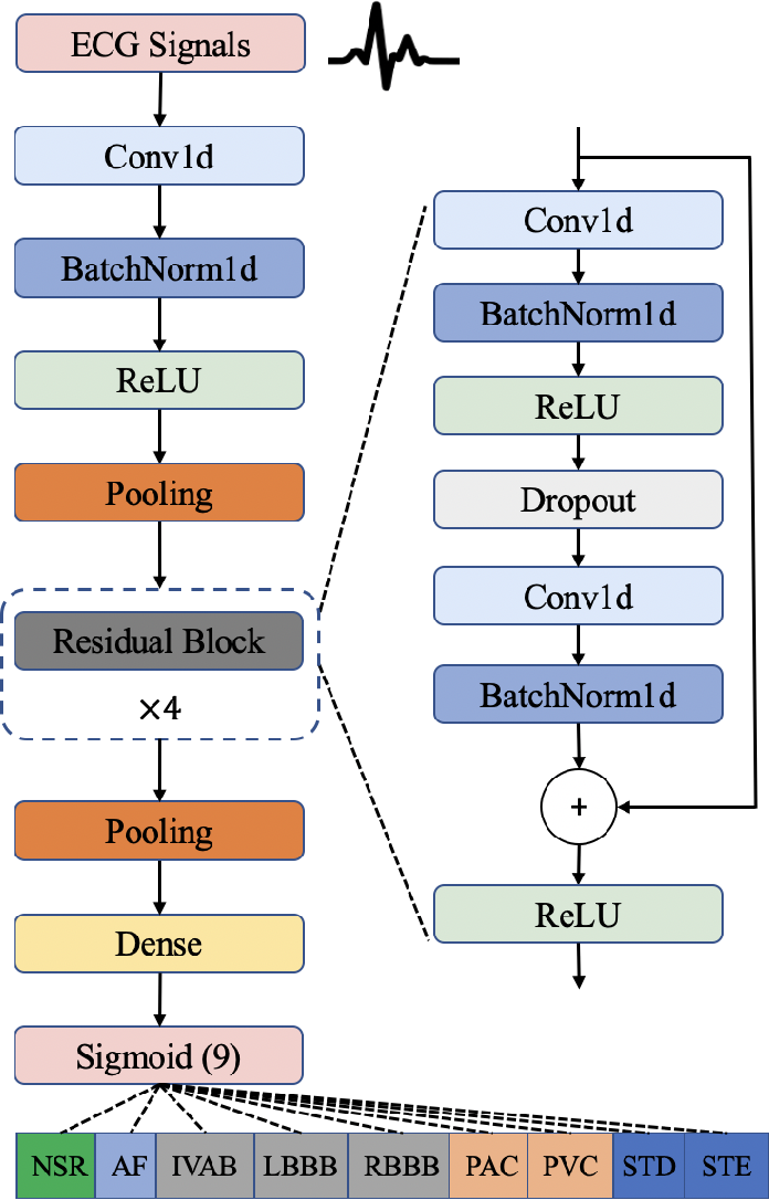 Figure 2 for Interpretable Deep Learning for Automatic Diagnosis of 12-lead Electrocardiogram