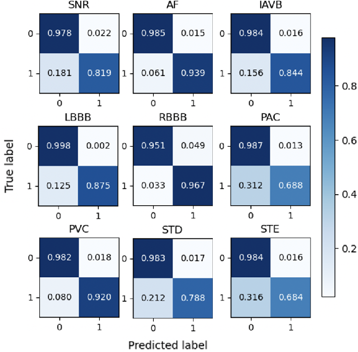 Figure 4 for Interpretable Deep Learning for Automatic Diagnosis of 12-lead Electrocardiogram