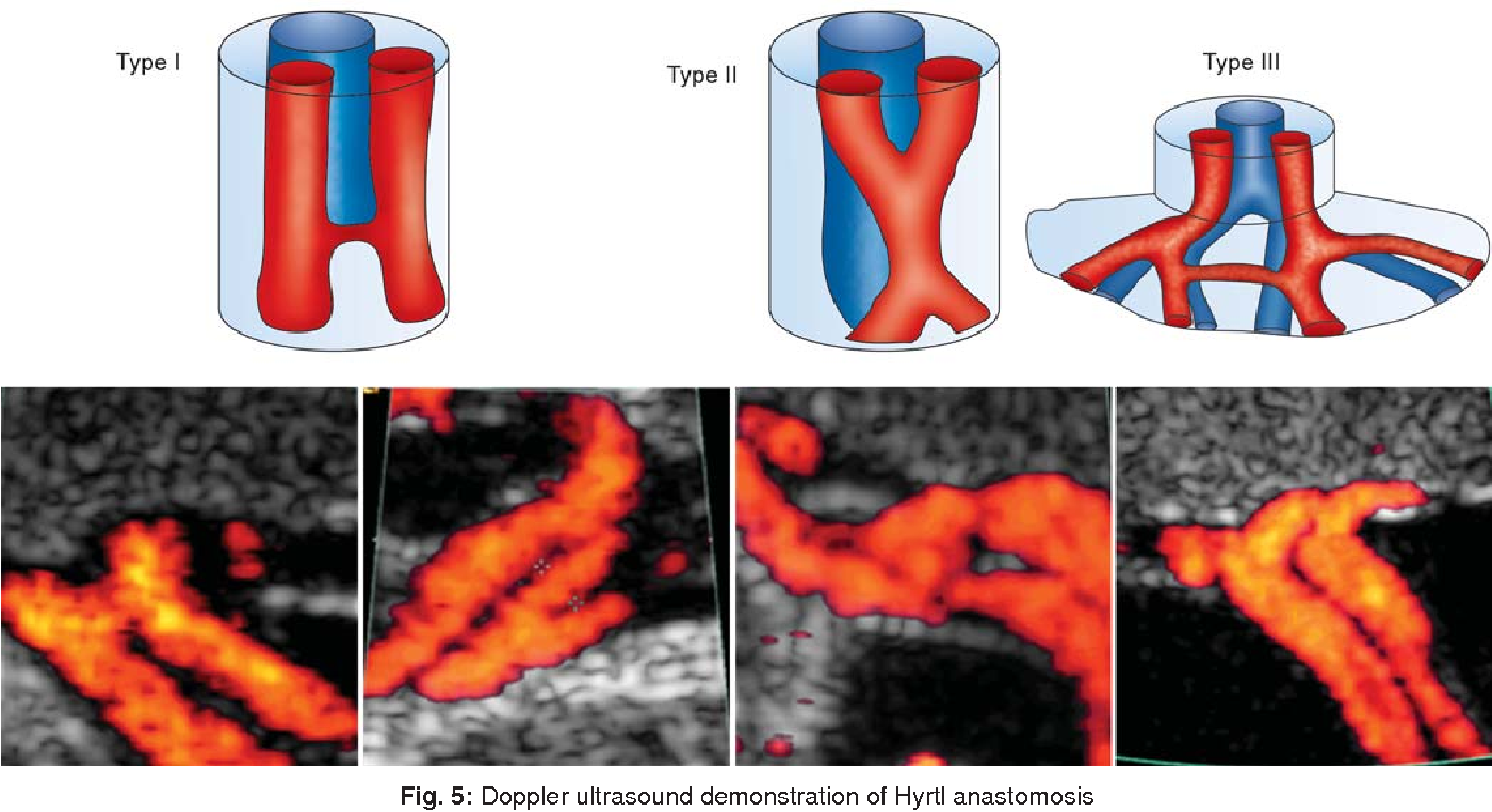 Sonographic Assessment of the Umbilical Cord. - Semantic Scholar