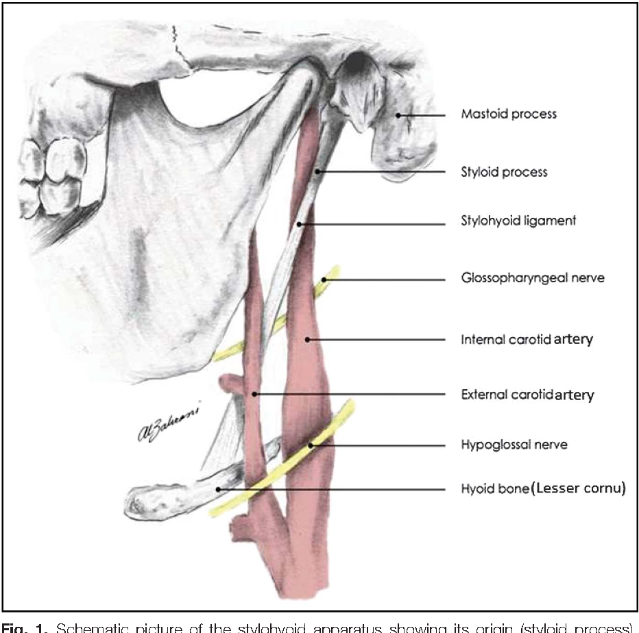 Calcification of the stylohyoid ligament in panoramic radiography ...