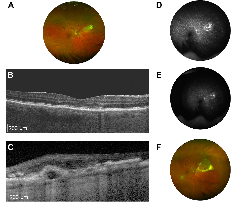 Figure 1 From Pachychoroid Neovasculopathy In Extramacular Choroidal