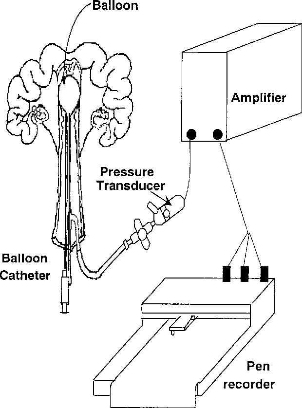 Uterus Wall Diagram