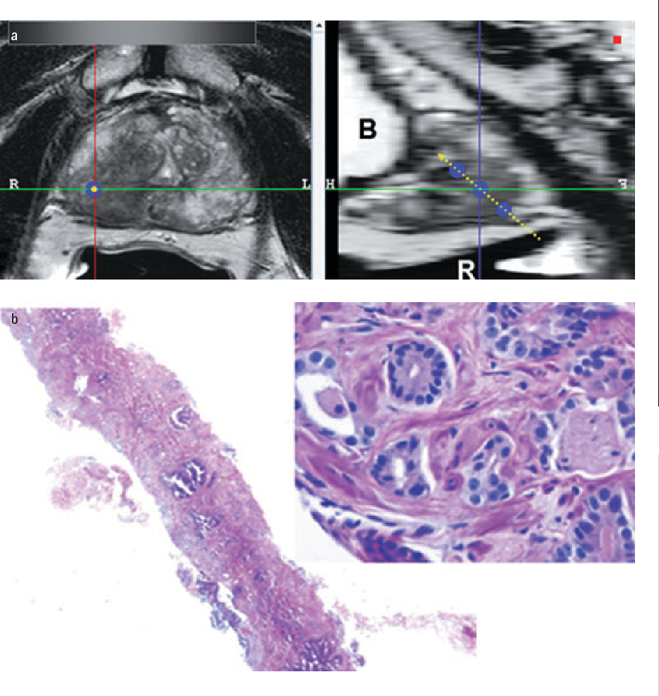 Documenting The Location Of Prostate Biopsies With Image Fusion