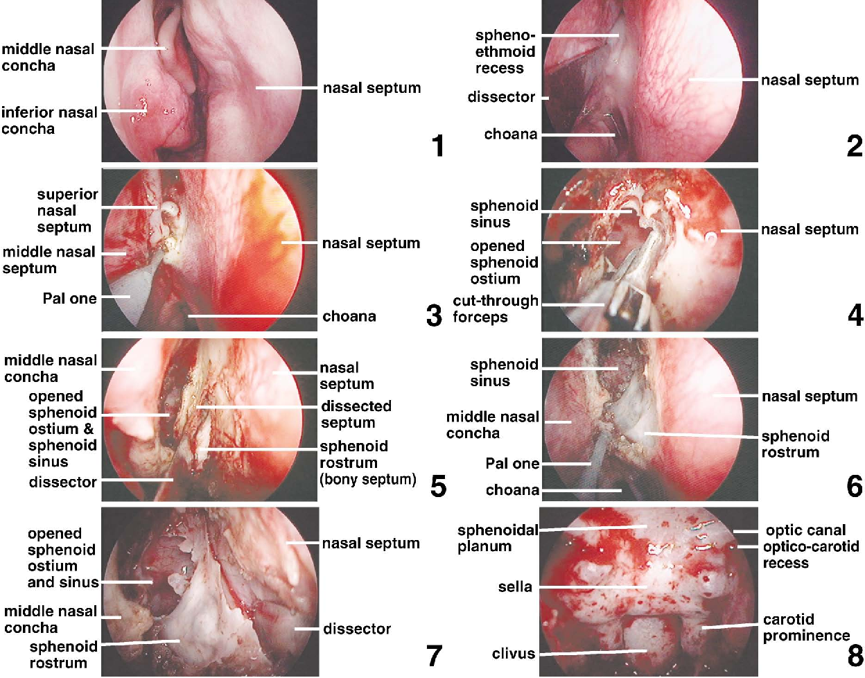 Figure 16 From Endoscopic Endonasal Pituitary And Skull Base Surgery