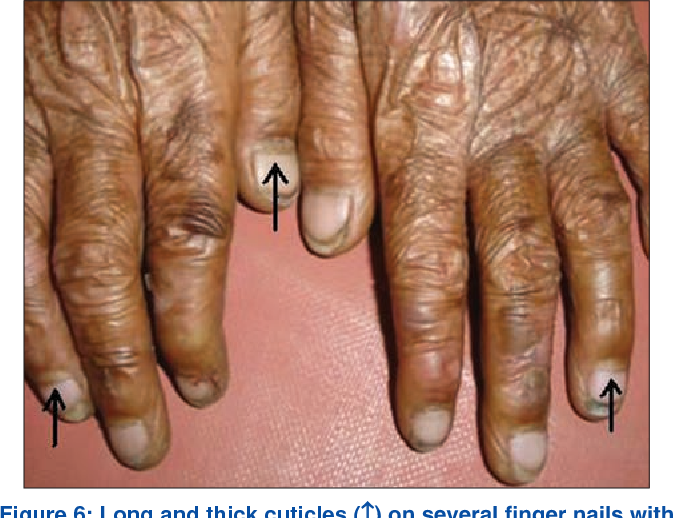 Figure 6 from Nails: diagnostic clue to genodermatoses. - Semantic ...