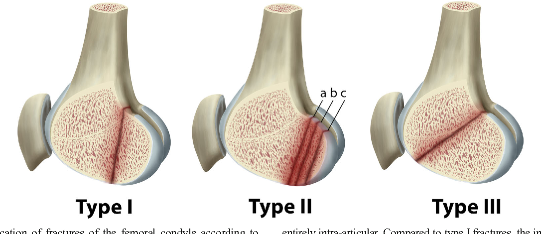 Coronal plane fracture of the femoral condyles: anatomy, injury ...