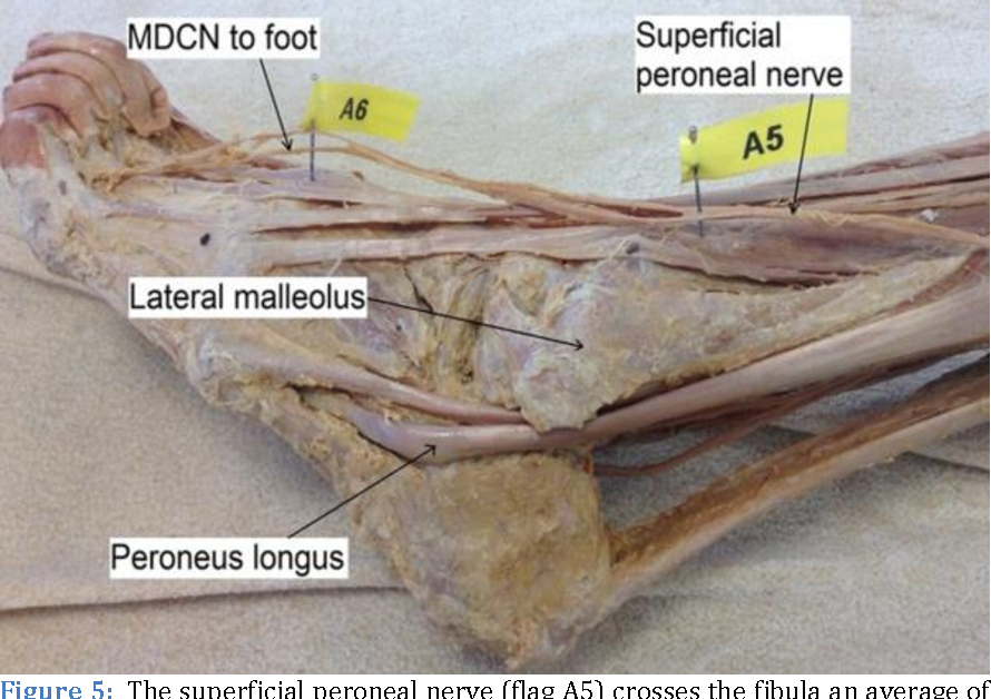 The superficial peroneal nerve : A review of its anatomy and ...