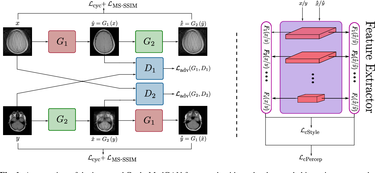 Figure 1 for Unsupervised Adversarial Correction of Rigid MR Motion Artifacts
