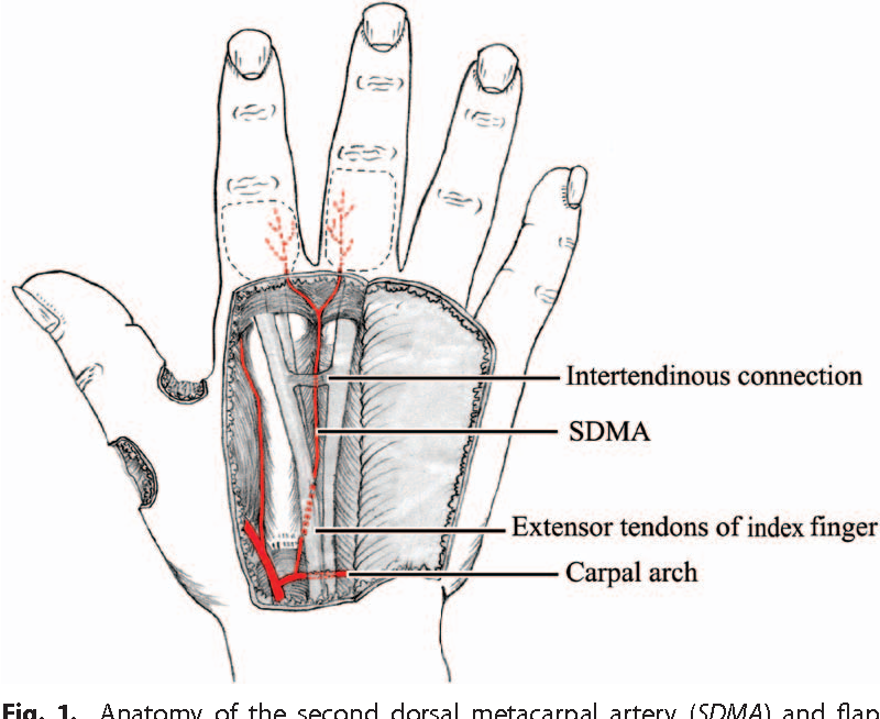 Treatment of complex soft-tissue defects at the metacarpophalangeal ...