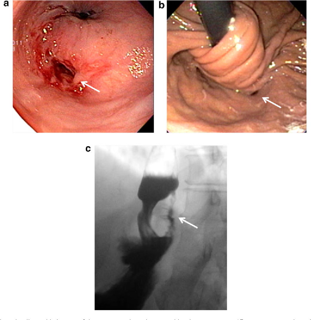 Where Is the Acid Coming from? Esophago-Gastric Fistula Following ...