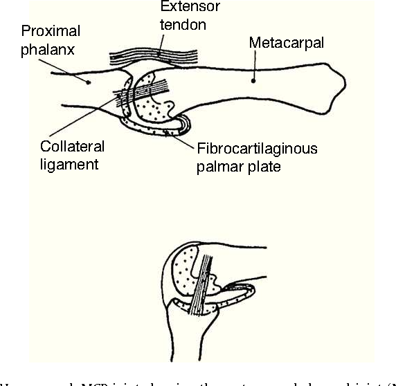 Figure 3 From Clinical Anatomy Of The Hand Semantic Scholar