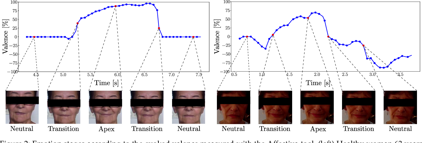 Figure 4 for Exploring Facial Expressions and Affective Domains for Parkinson Detection
