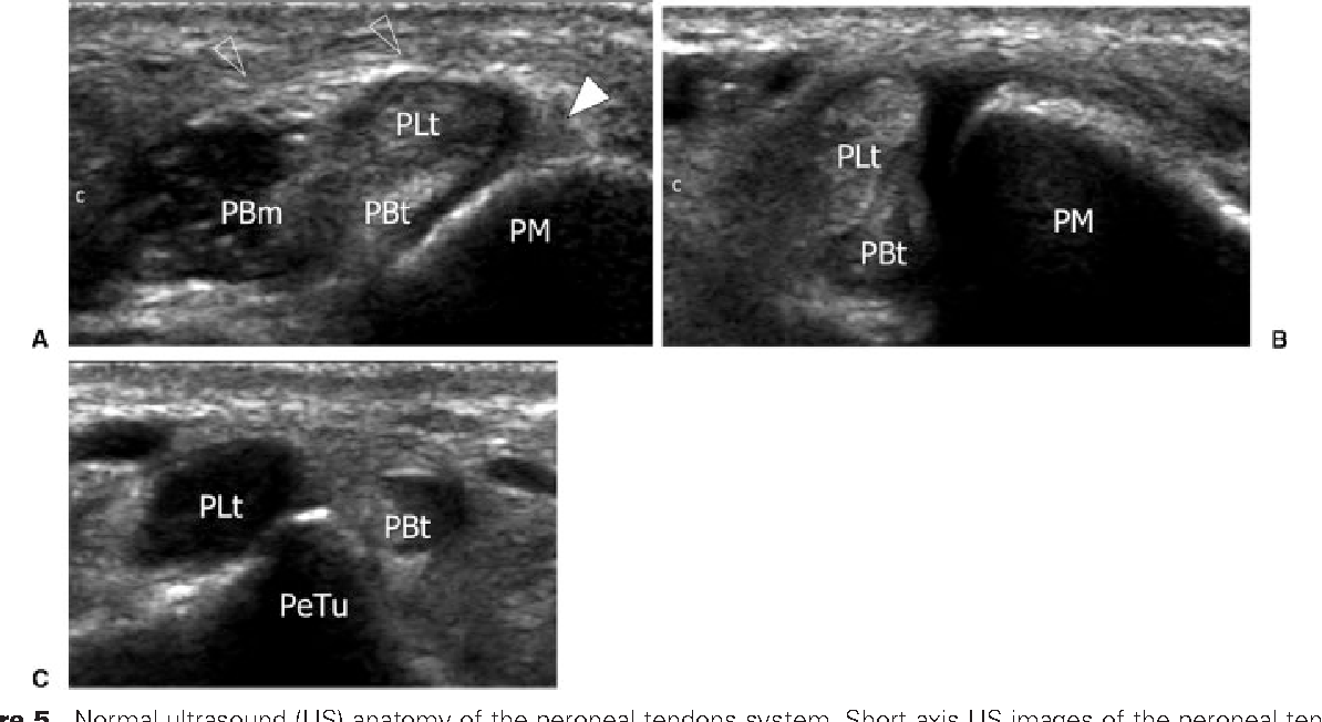 Figure 5 from Ultrasound of peroneal tendons. - Semantic Scholar