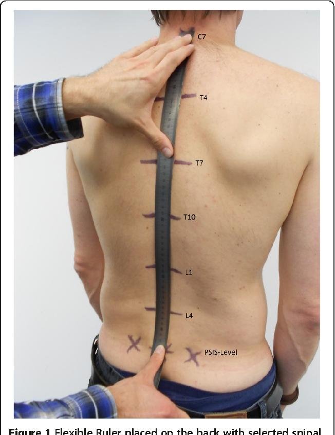 Structure Of Posterior Superior Iliac Spine Semantic Scholar