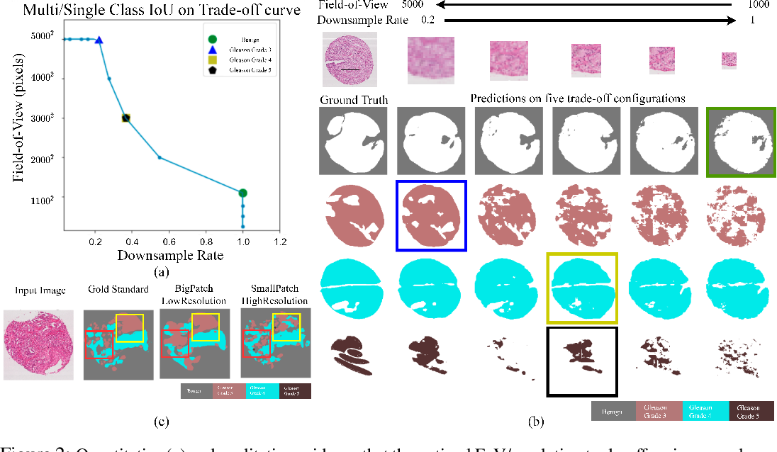 Figure 3 for Foveation for Segmentation of Ultra-High Resolution Images