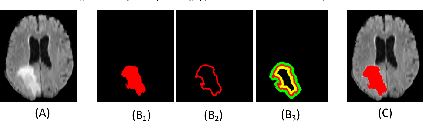 Figure 3 for Offset Curves Loss for Imbalanced Problem in Medical Segmentation