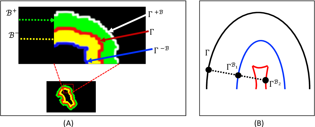 Figure 4 for Offset Curves Loss for Imbalanced Problem in Medical Segmentation