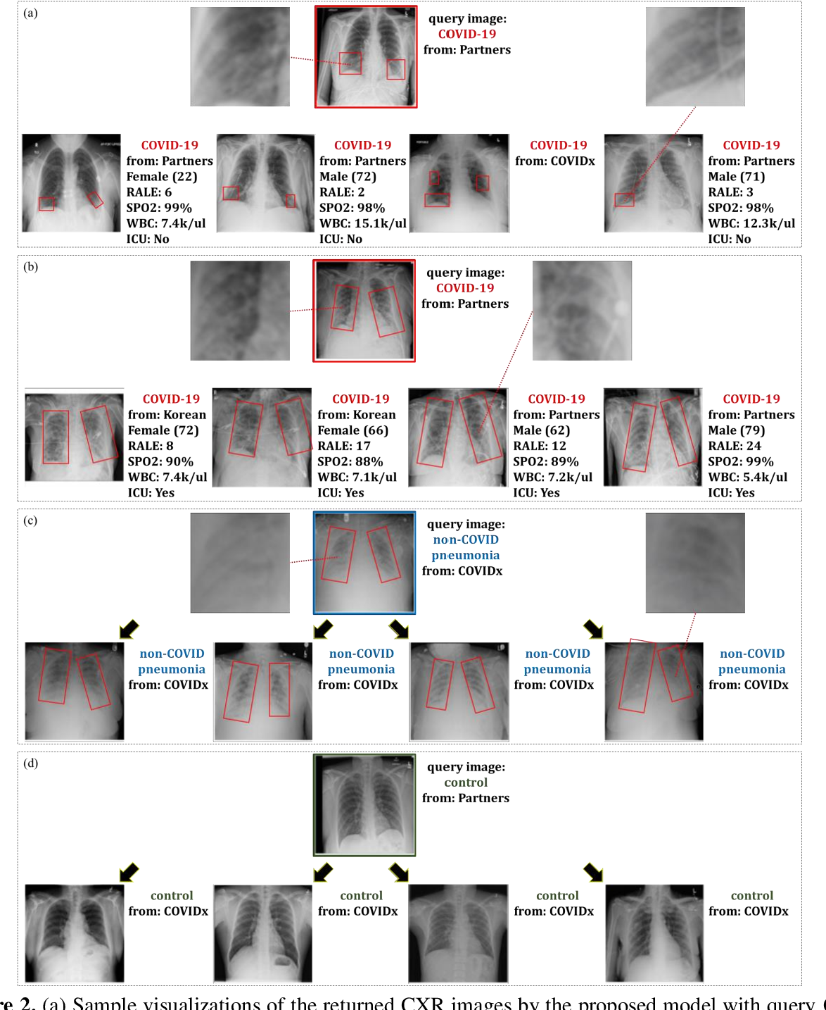 Figure 4 for Deep Metric Learning-based Image Retrieval System for Chest Radiograph and its Clinical Applications in COVID-19