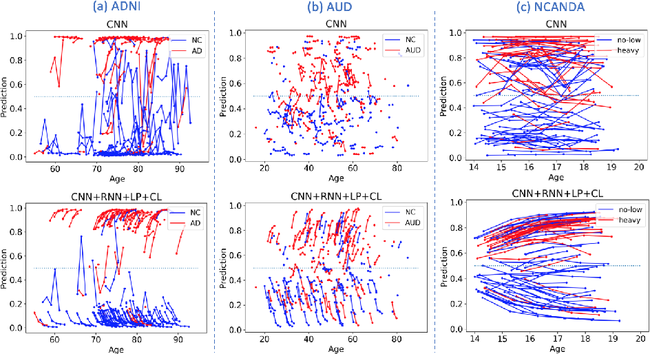 Figure 3 for Recurrent Neural Networks with Longitudinal Pooling and Consistency Regularization
