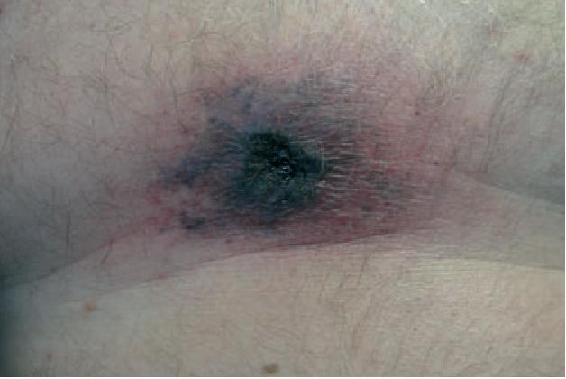 Figure 1 Hemorrhagic violaceous plaque with surrounding erythema on anterior chest