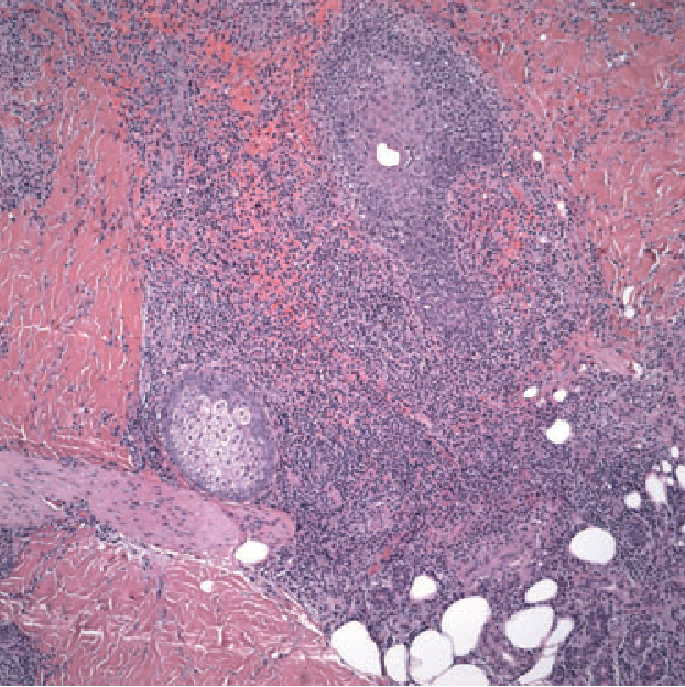 Figure 4 Diffuse dermal infiltration of hematopoietic cells (H&E ·10).