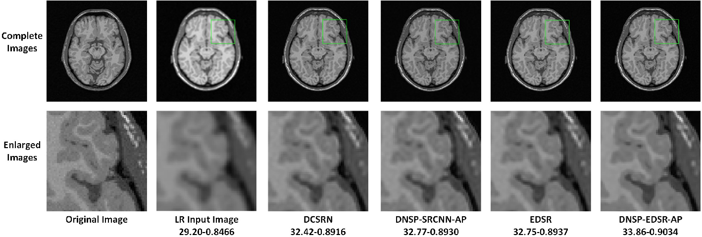 Figure 3 for Deep MR Brain Image Super-Resolution Using Spatio-Structural Priors