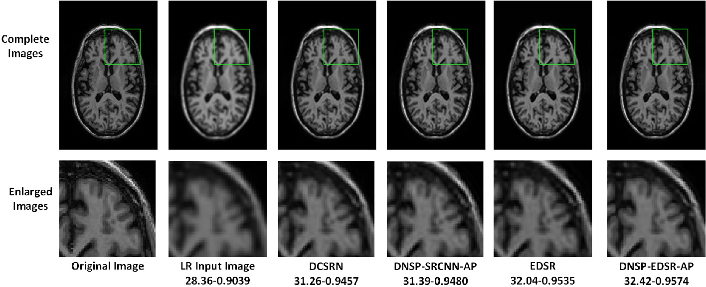 Figure 4 for Deep MR Brain Image Super-Resolution Using Spatio-Structural Priors