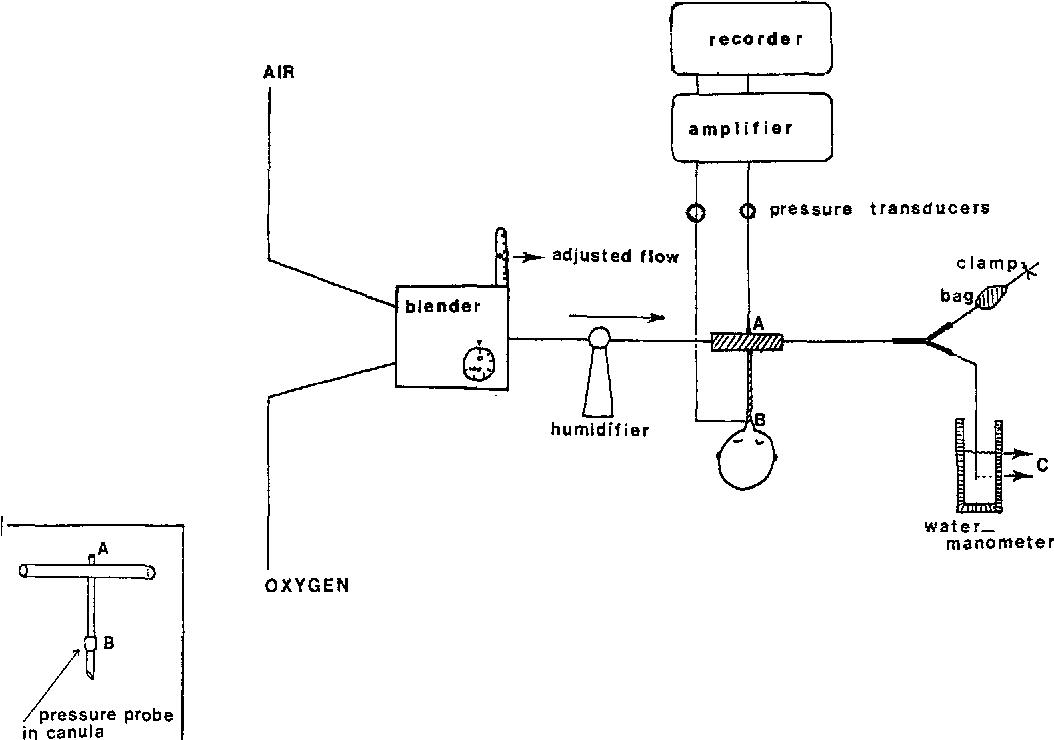 Blow Off Valve Installation Diagram