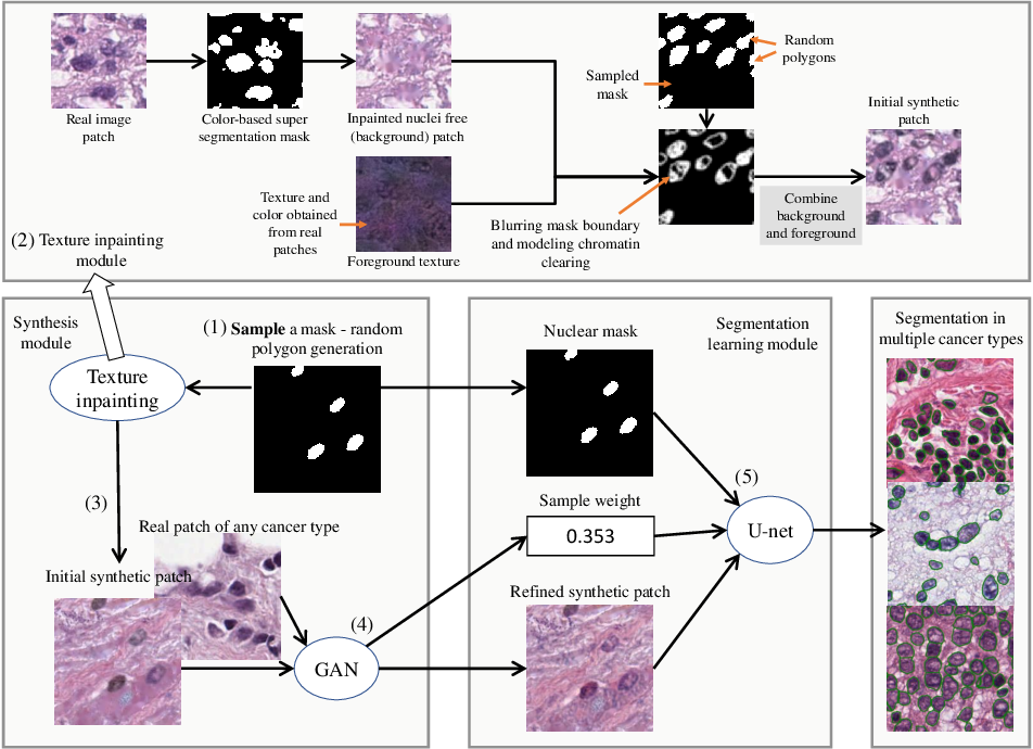 Figure 3 for Dataset of Segmented Nuclei in Hematoxylin and Eosin Stained Histopathology Images of 10 Cancer Types