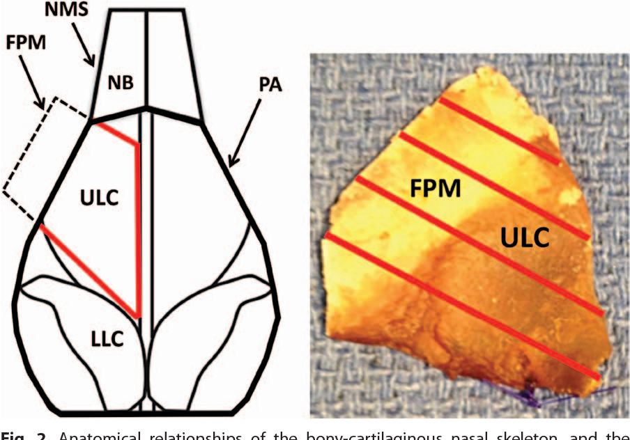 Anatomy of the upper lateral cartilage along the lateral pyriform ...