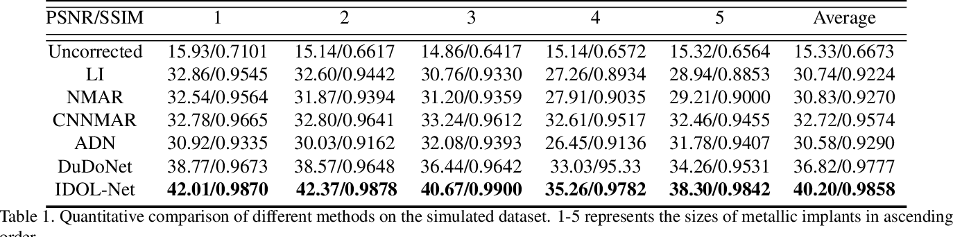 Figure 2 for IDOL-Net: An Interactive Dual-Domain Parallel Network for CT Metal Artifact Reduction