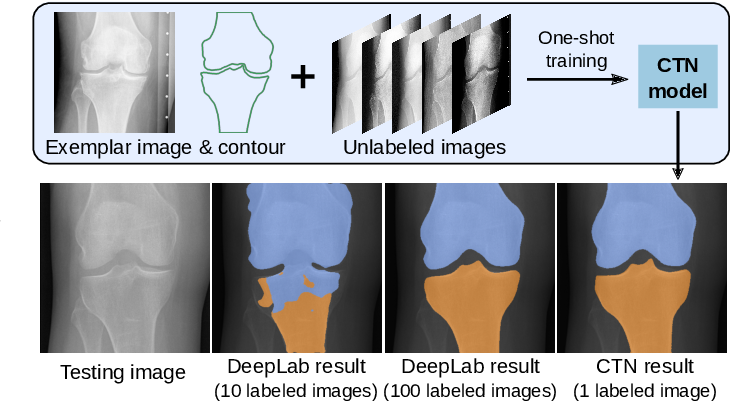 Figure 1 for Contour Transformer Network for One-shot Segmentation of Anatomical Structures