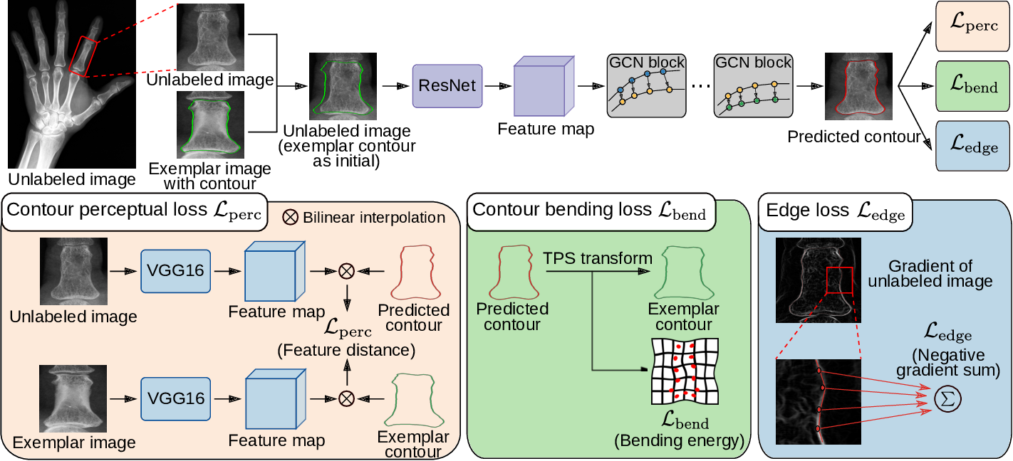 Figure 3 for Contour Transformer Network for One-shot Segmentation of Anatomical Structures