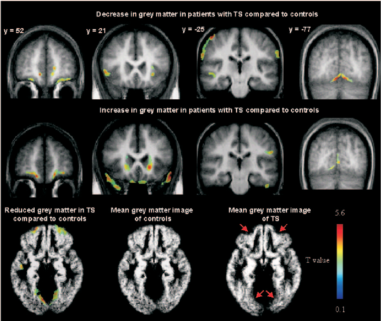 Brain anatomy in Turner syndrome: evidence for impaired social and ...