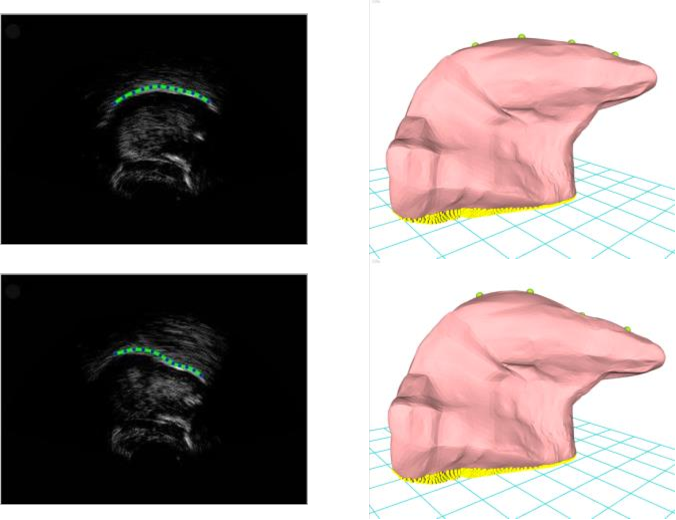 Figure 3 for Contour-based 3d tongue motion visualization using ultrasound image sequences